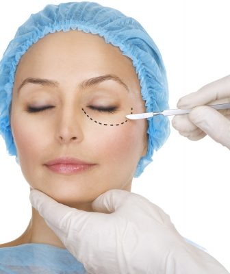 Blepharoplasty Dallas, TX