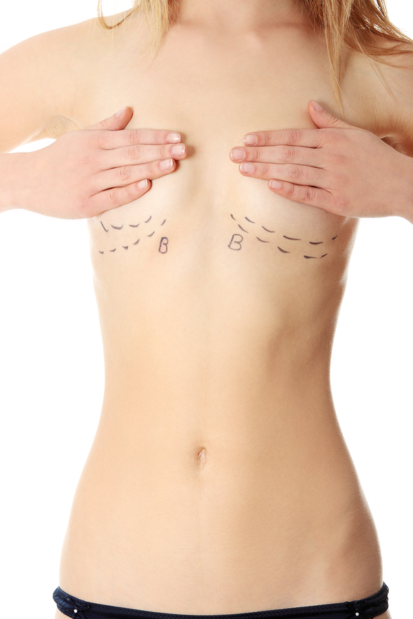 breast reduction surgery dallas, tx
