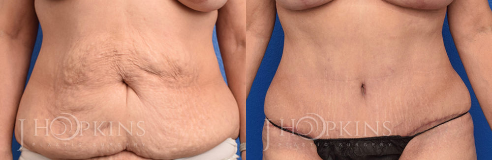 Patient 1 Before and After Abdominoplasty Front View