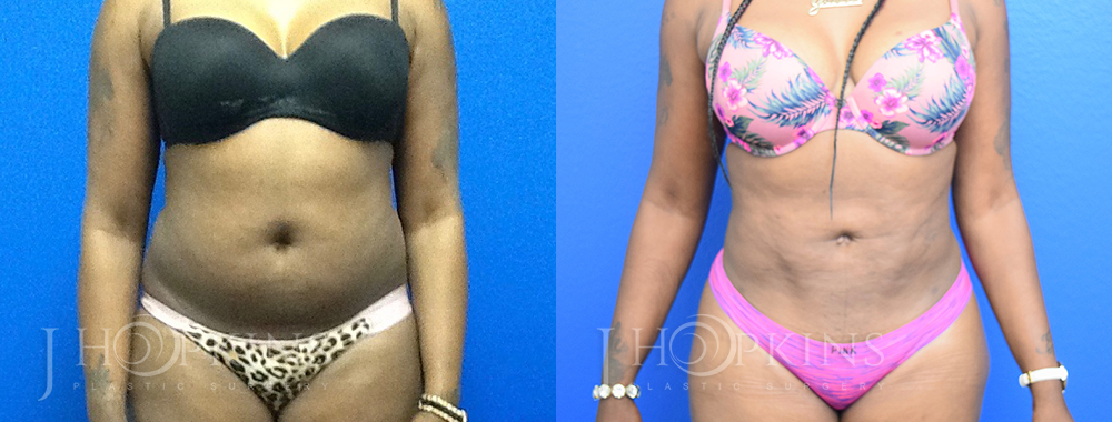 Patient 11c Before and After Liposuction Front View