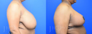Patient 4 Before and After Breast Reduction Right Side View