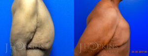 Patient 1 Before and After Male Breast Reduction Right Side View