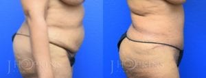 Patient 1 Before and After Tummy Tuck Right Side View
