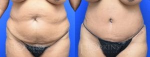 Patient 1 Before and After Tummy Tuck Front View