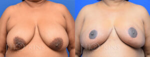 Patient 2 Before and After Breast Reduction Front View Copy