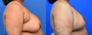Patient 2 Before and After Breast Reduction Right Side View Copy