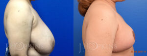 Patient 3 Before and After Breast Reduction