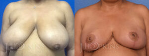 Patient 1 Before and After Breast Reduction Front View