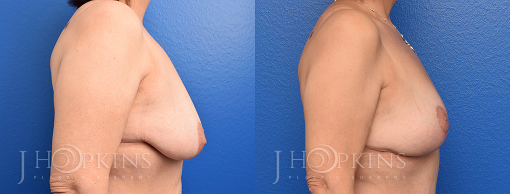 Patient 1 Before and After Breast Lift Right Side View