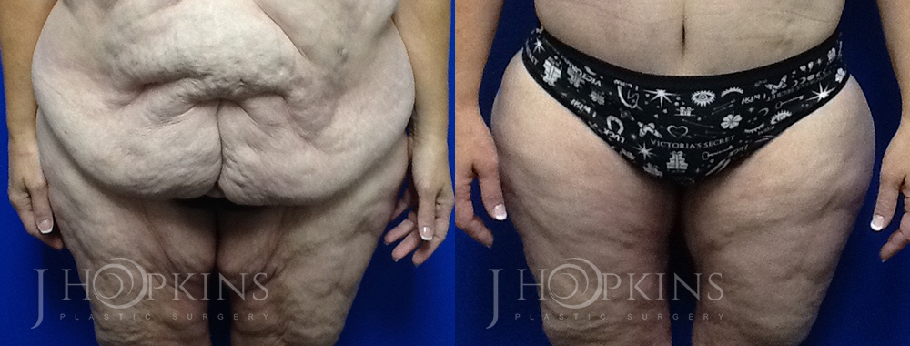 Panniculectomy Before and After Photos - Patient 5A