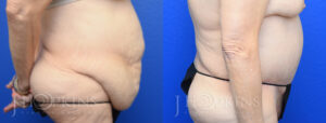 Panniculectomy Before and After Photos - Patient 6B