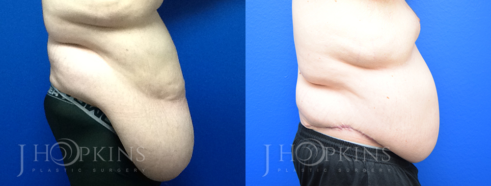 Panniculectomy Before and After Photos - Patient 7B