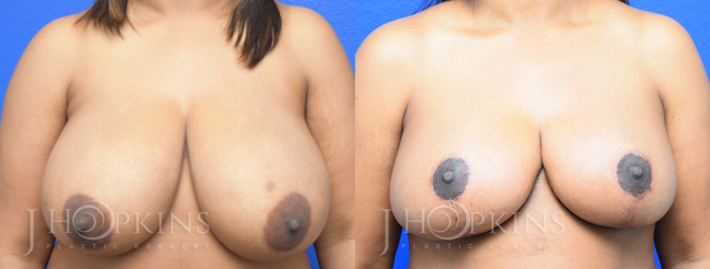 Patient 5 Before and After Breast Reduction Front View