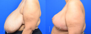 Patient 7 Before and After Breast Reduction Left Side View