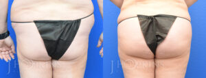 Patient 9 Before and After Liposuction Back View