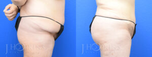 Patient 9 Before and After Liposuction Right Side View