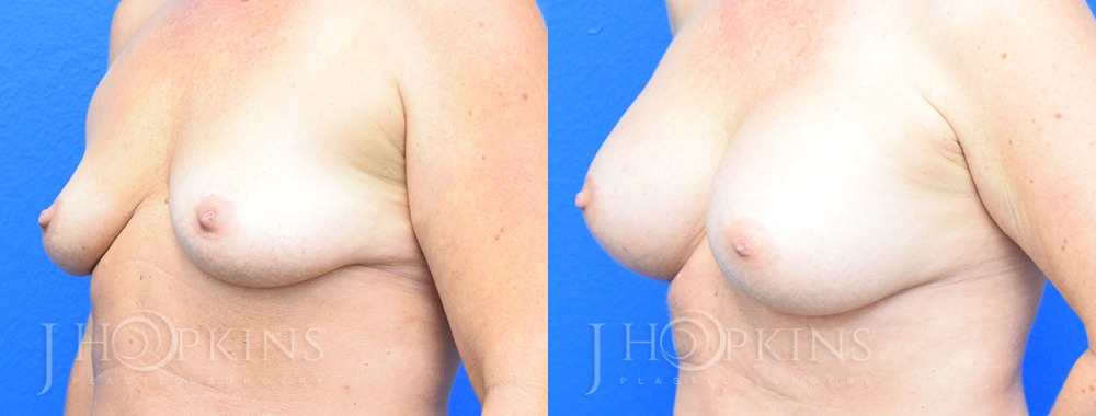 Breast Augmentation Before and After Photos - Patient 3b