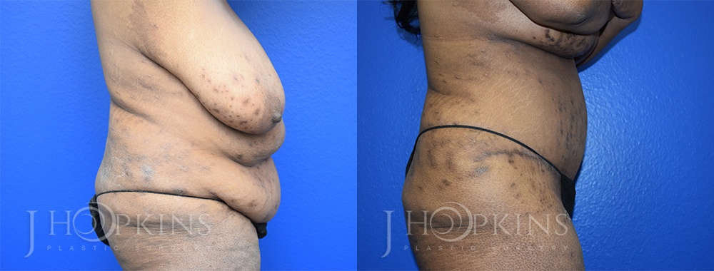Panniculectomy Before and After Photos - Patient 9B