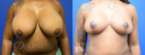 Patient 8 Before and After Breast Reduction Front View