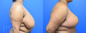 Patient 9 Before and After Breast Reduction Right Side View