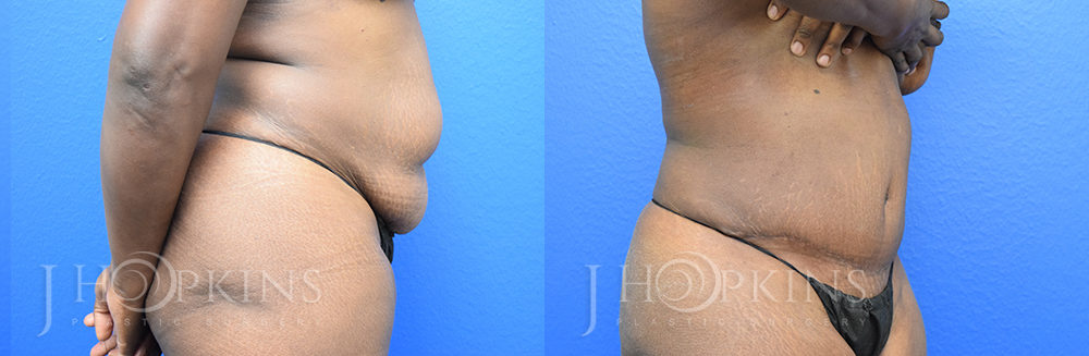 Patient 5a Before and After Tummy Tuck Front View