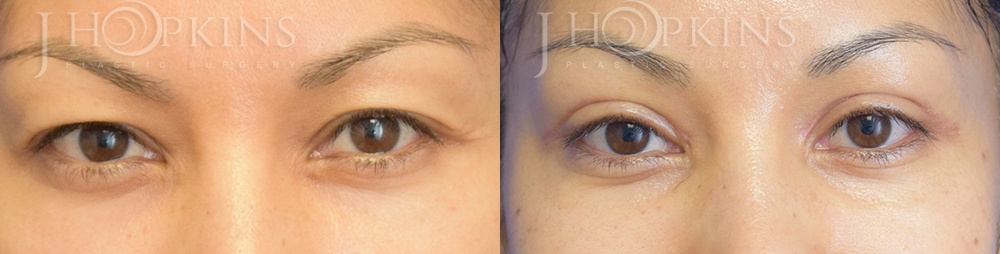 Blepharoplasty Before and After Photos - Patient 4A