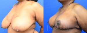 Breast Reduction Before and After Photos - Patient 10A