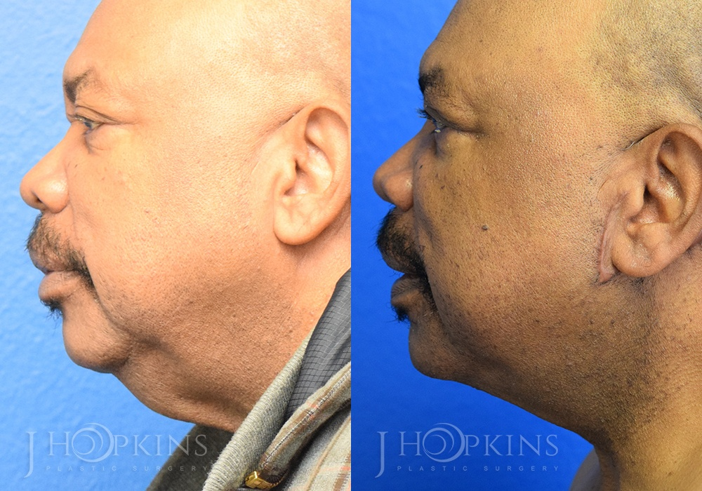 Neck Lift Before and After Photos - Patient 1A