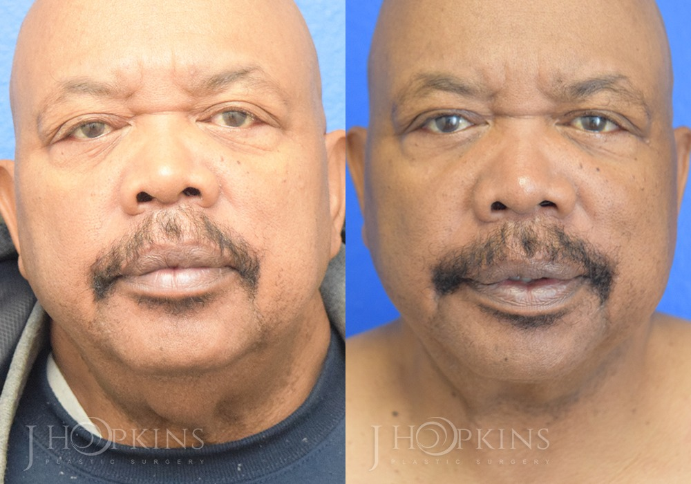 Neck Lift Before and After Photos - Patient 1B