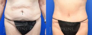 Tummy Tuck Before and After Photos - Patient 7A