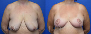 Patient 14 Before and After Breast Reduction Front View