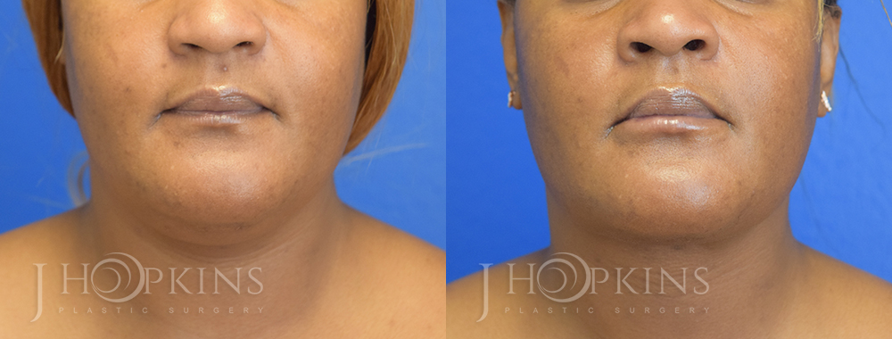 Patient Before and After Chin Lipo Left Side View