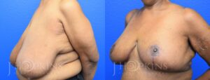 Patient 13 Before and After Breast Reduction Left Side Angle View