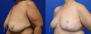 Patient 11 Before and After Breast Reduction Left Side Angle View