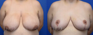 Patient 15 Before and After Breast Reduction Front View