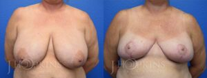 Patient 16 Before and After Breast Reduction Front View
