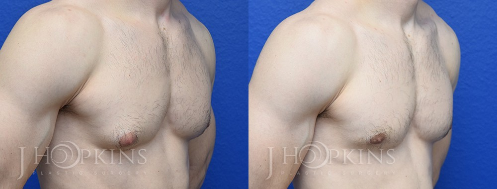 Patient 2 Before and After Male Gynecomastia Right Angle Side View