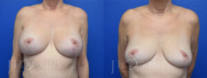 Patient 1 Before and After Breast Implant Removal Front View