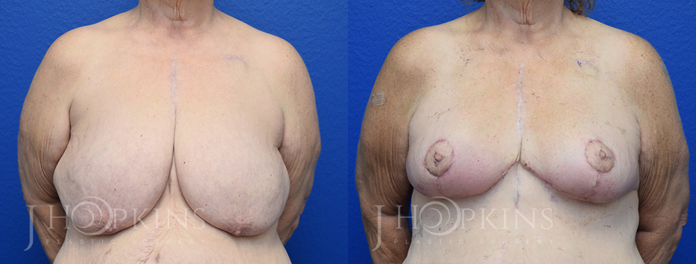 Patient 19 Before and After Breast Reduction Front View