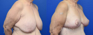 Patient 19 Before and After Breast Reduction Right Side Angle View