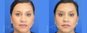 hopkins-dallas-botox-patient-2-1