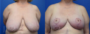 hopkins-dallas-breast-reduction-patient-20-1