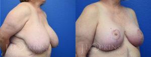 hopkins-dallas-breast-reduction-patient-20-2