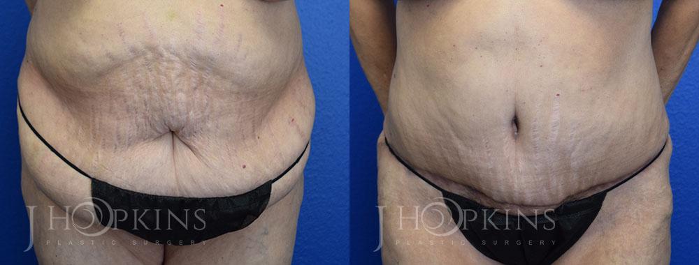 hopkins-dallas-tummy-tuck-patient-8-1