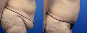 hopkins-dallas-tummy-tuck-patient-8-2