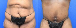 hopkins-dallas-tummy-tuck-patient-9-1