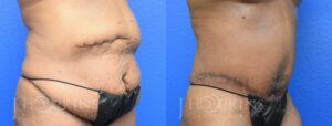 hopkins-dallas-tummy-tuck-patient-9-2