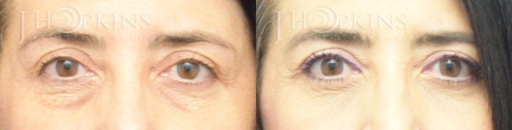 Blepharoplasty-Before-and-After-Photos-Patient-2A