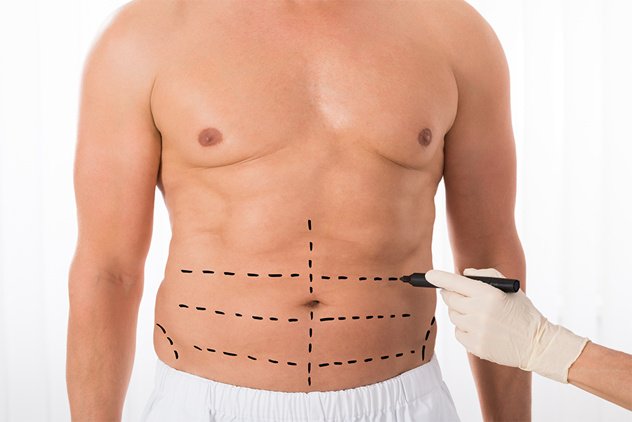 DrjHokins_DallasTX_Liposuction_Male Photo