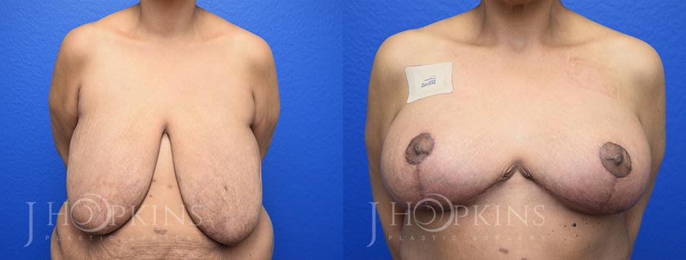 DrJHopkins_DallasTx_BreastReduction_B&A_Patient-23_Front